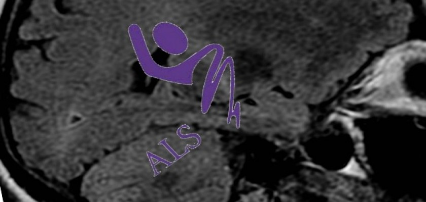 ALS Hastalığı Nedir, ALS Neden Olur?